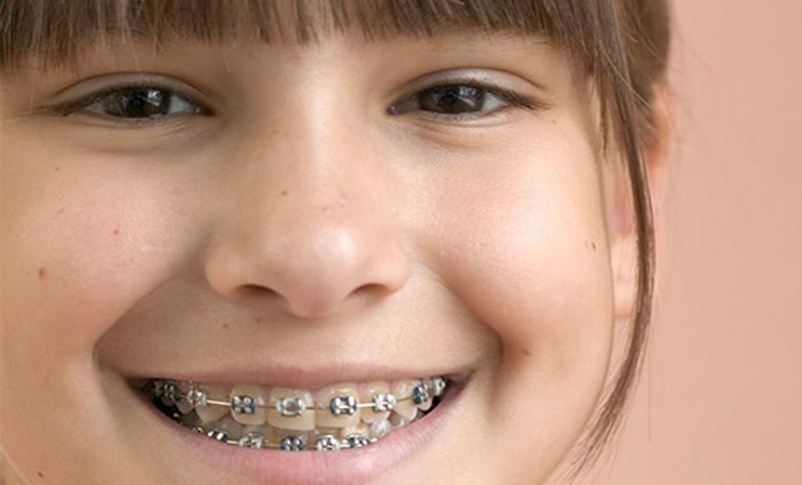 Zahnspange ich wie sehe aus mit Kieferorthopädie Dr.